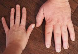 """""""El ve ayak büyümesinin sebebi akromegali hastalığı olabilir"""""""