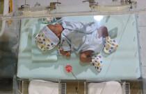 Her yıl 15 milyon bebek hayata 'erken' başlıyor