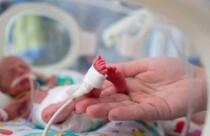 """""""Her yıl yaklaşık 15 milyon bebek yani her 10 bebekten 1'i prematüre"""""""